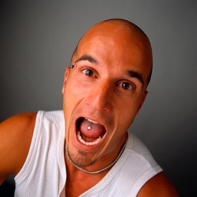 Bald_2